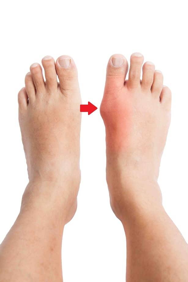que consecuencias tiene el acido urico elevado alimentos aconsejables para bajar el acido urico porque me sale acido urico en los pies
