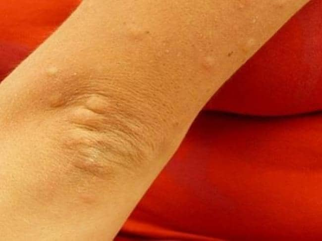 problemas de diabetes con decoloración de la piel