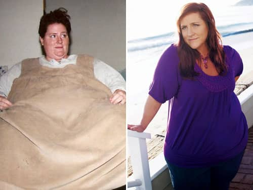 Ruby's before and after weight loss photos