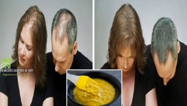 A que sueña la caída de los cabello a las mujeres