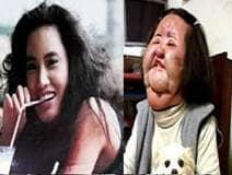 Ex modelo coreana deforma su rostro al inyectarse aceite de cocina en la cara